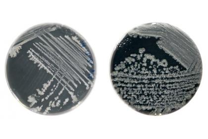枯草桿菌(左)及地衣芽孢桿菌(右)的菌落。